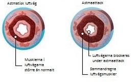 astma6illu